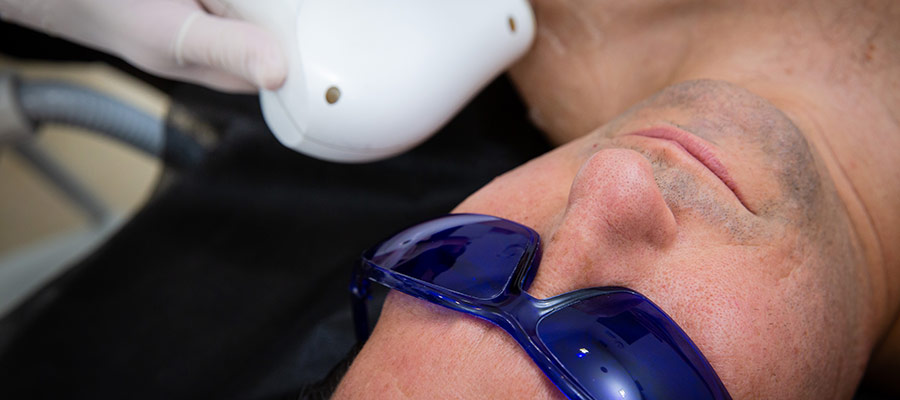 depilacion intima masculina sevilla