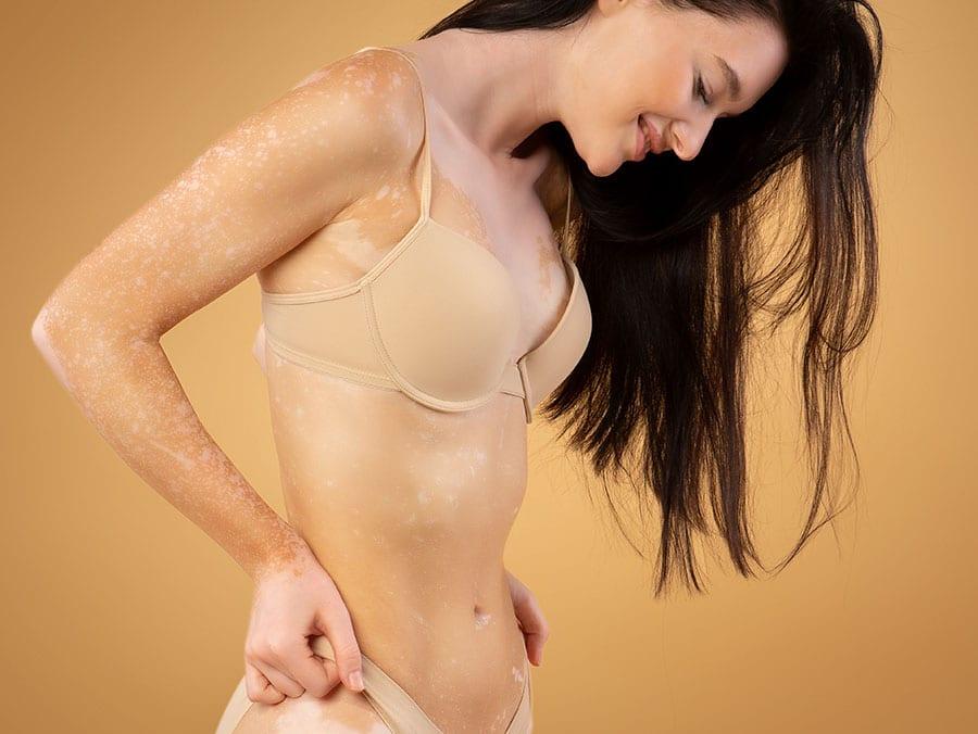 tratamiento vitiligo