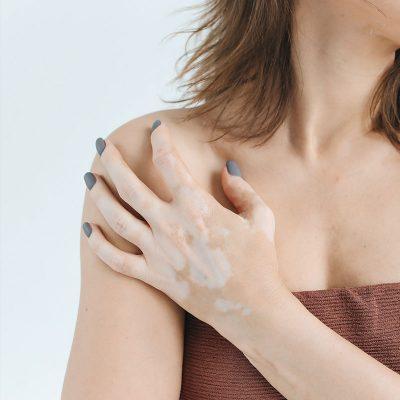 tratamiento vitiligos